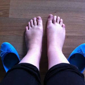 Dicker Fuß nach Sport